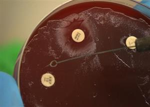Fighting superbugs